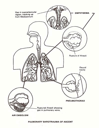 PULMONARY BAROTRAUMA OF ASCENT
