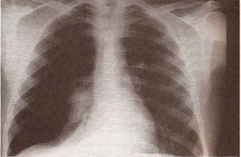 Pneumothorax X-RAY